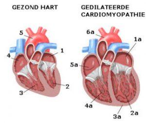 doorsnede hart